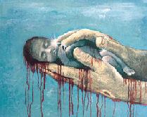 20080613213953-aborto2.jpg